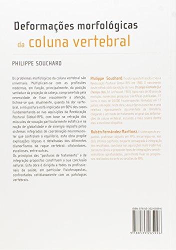 Deformações Morfológicas da Coluna Vertebral