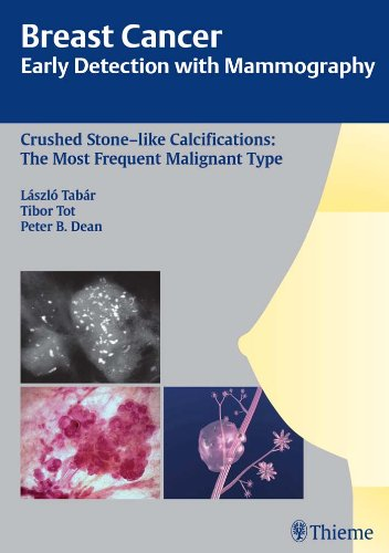 Breast Cancer Early Detection with Mammography Crushed Stone-like Calcifications The Most Frequent Malignant Type (1st 2008) [Tabar, Tot & Dean]