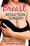 Breast Reduction Surgery: The Complete Guide to