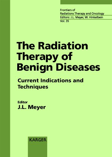 Download The Radiation Therapy of Benign Diseases: Current Indications and Techniques 33rd San Francisco Cancer Symposium, San Francisco, Calif., April 1999 ... of Radiation Therapy and Oncology, Vol. 35) PDF