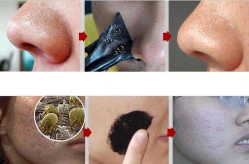 12 Nose Blackhead Removal Strips - Pore Masks