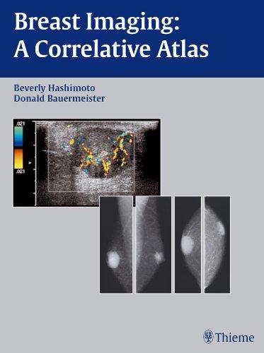 Breast Imaging A Correlative Atlas (1st 2002) [Hashimoto & Bauermeister]