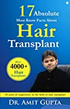17 Absolute Must Know Facts About Hair Transplant