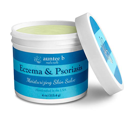 Natural Eczema and Psoriasis Salve by Auntee B Naturals   Made with Shea Butter, Coconut Oil, Beeswax, Vitamin E, Plantain   Organic Treatment For Itchy, Sensitive, Dry Skin, and Psoriasis