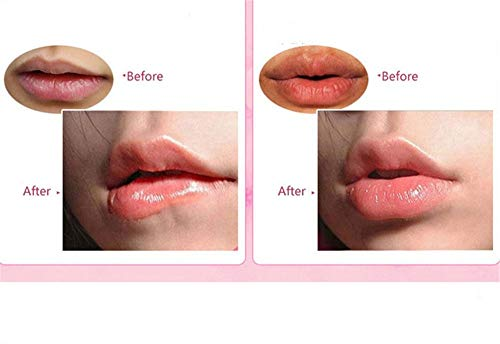 Permotary 30 Pieces Pink Gel Collagen Lip Mask Crystal Lip Pads For Moisturizing, Anti-Wrinkle, Anti-Aging, Firms & Hydrates Lips, Pink