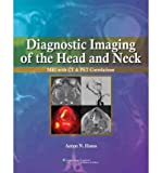 Diagnostic Imaging Of The Head And Neck: Mri With