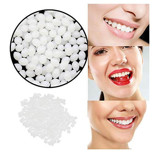 XBKPLO Multi-Functional Temporary Tooth Repair Kit Moldable Thermal Fitting Beads for Snap On Instant and Confident Smile Denture Adhesive Fake Teeth Cosmetic Braces Veneer (Fitting Beads For Cosmetic Teeth)