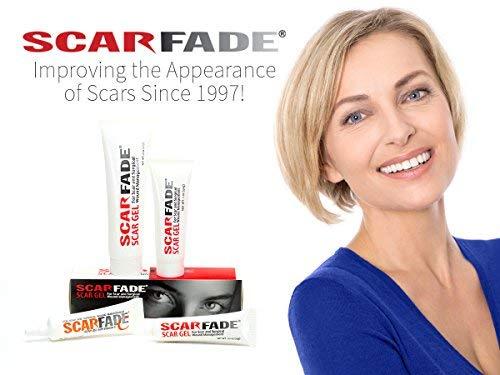Buy scar fade cream