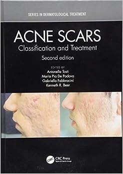 Descargar Torrent La Llamada 2017 Acne Scars: Classification And Treatment, Second Edition Paginas Epub