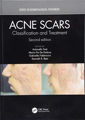 Acne Scars: Classification and Treatment, Second Edition (Series in Dermatological Treatment) (Rated Top Scar Removal Acne)