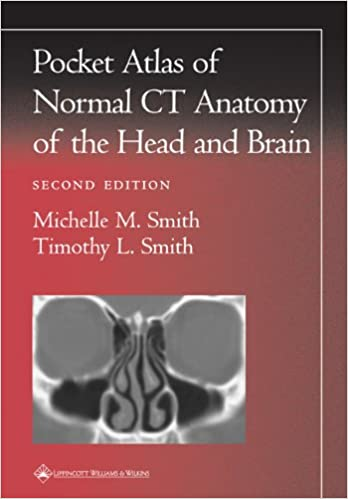 Pocket Atlas Of Normal Ct Anatomy Of The Head And Brain Radiology