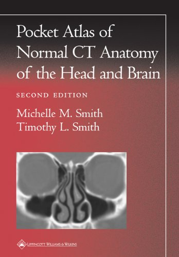 Pdf Medical Books Pocket Atlas of Normal CT Anatomy of the Head and Brain (Radiology Pocket Atlas Series)