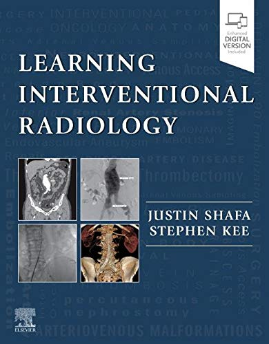 39 Best Interventional Radiology Books of All Time