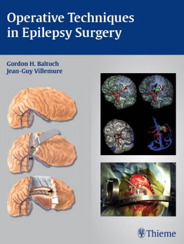Operative Techniques in Epilepsy Surgery Pdf