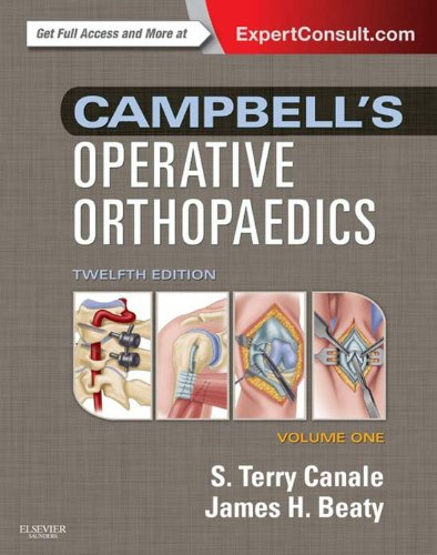 Campbell's Operative Orthopaedics: Expert Consult Premium Edition - Enhanced Online Features Pdf