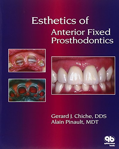 Esthetics of Anterior Fixed Prosthodontics