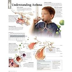 Understanding Asthma chart: Laminated Wall Chart