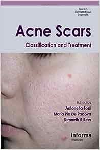 Wai Says: Free Acne Book
