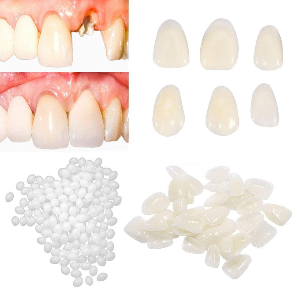 Brige Temporary Tooth Repair kit for Fix Filling the Missing Broken Tooth and Gaps-Moldable Fake Teeth Veneers and Thermal Beads Replacement Kit, Artfifical Teeth : Beauty