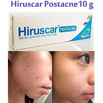 Amazon com : Hiruscar Post Acne Gel for Acne Scar Scars & Fade Dark