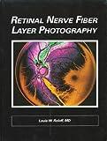 Retinal Nerve Fiber Layer Photography, Louis Roloff, 1556421613