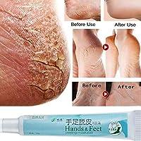 RONSHIN Accesorios de belleza para pies agrietados en la mano del talón, crema para piel áspera seca y agrietada