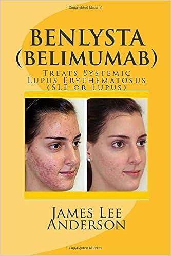 Read BENLYSTA (Belimumab): Treats Systemic Lupus Erythematosus (SLE or Lupus) PDF