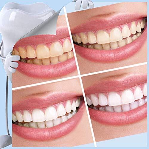 Kit de Nano Blanqueamiento Dental Profesional,Borrador de Dientes Teeth Whitening,para Eliminar El Sarro y Manchas Persistentes Rápidamente, ...