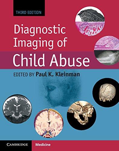 Diagnostic Imaging of Child Abuse Pdf