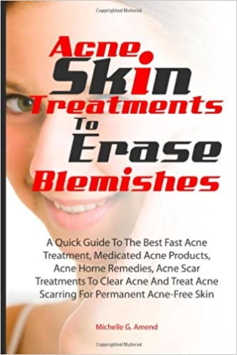 Acne Skin Treatments To Erase Acne Blemishes: A Quick Guide To The Best Fast Acne Treatment, Medicated Acne Products, Acne Home Remedies, Acne Scar Acne ...