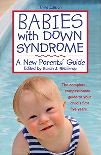 Babies with Down Syndrome: A New Parents' Guide: Susan J