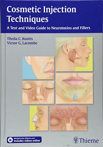 (Cosmetic Injection Techniques: A Text and Video Guide to Neurotoxins and Fillers)