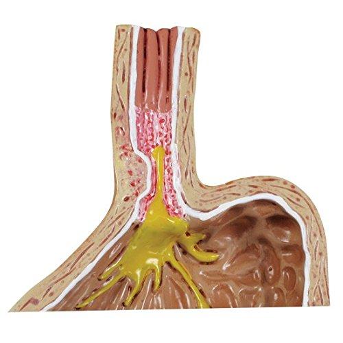 Gastroesophageal Reflux Disease GERD Model Set of 4
