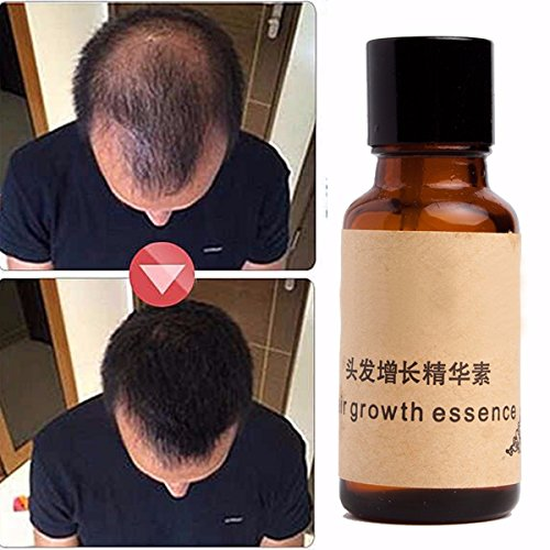 LUCKYFINE Herbal Hair Growth Essence Help Hair Growing Fast Longer