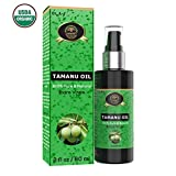 Tamanu Oil – Pure Cold Pressed – Best Treatment and Relief for Dry, Scaly Skin, Blister Psoriasis, Eczema, Acne Scar, Foot Fungus, Rosacea For Sale
