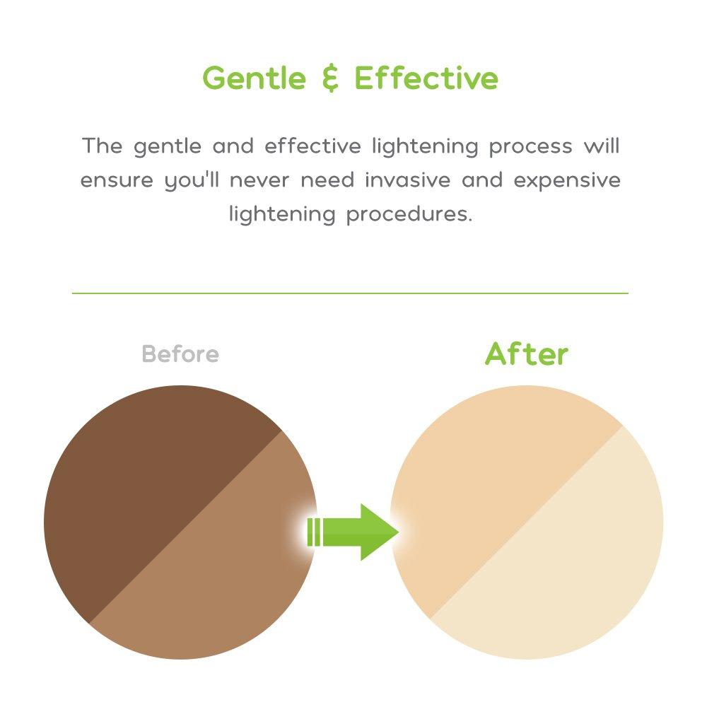 Amaira Intimate Lightening Serum Bleaching Cream - Skin Lightener Whitening for Sensitive Spots, Private Areas Parts, Underarm Armpit, Dark Spots - Gentle Kojic Acid Formula for All Skin Types by Amaira Natural Skincare (Image #3)