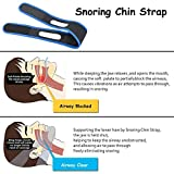 Snore Stopper, Anti Snoring Chin Strap, Sleep Aid