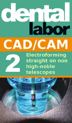 Electroforming straight on non high-noble telescopes (dental lab technology articles Book 4)