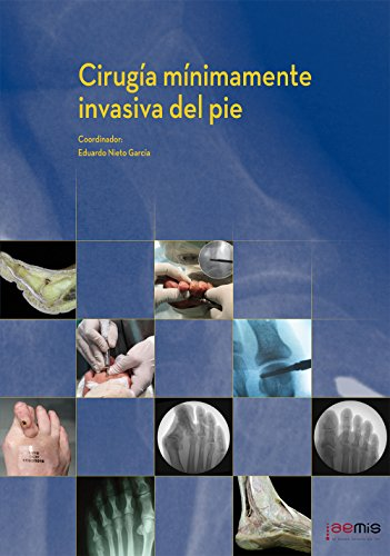 Cirugia minimamente invasiva del pie (Spanish Edition) [Eduardo Nieto Garcia - et al.] (Tapa Dura)