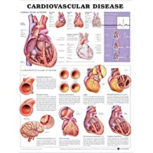 Anatomical Chart Co Cardiovascular Disease 2nd Edition - Laminated