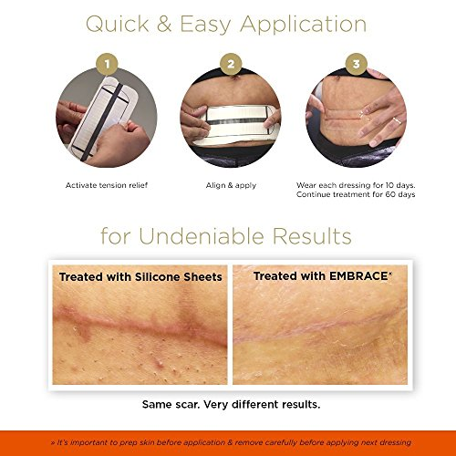 Embrace Scar Treatment, Silicone Sheets for New Scars with Active Scar Defense, Small 1.6 inch Sheets, 3 Count, Initial Half Treatment (30 Day Supply) by Embrace (Image #4)'