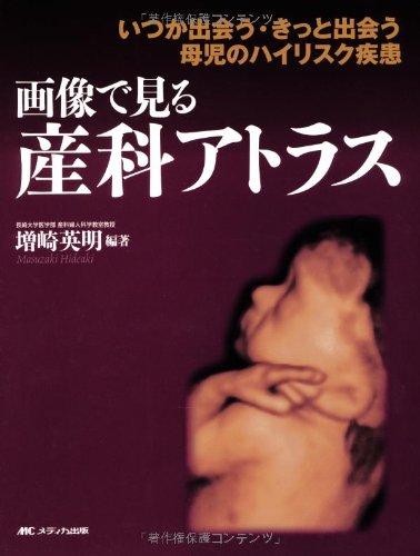 Read Online Gazo de miru sanka atorasu : Itsuka deau kitto deau boji no hai risuku shikkan. PDF