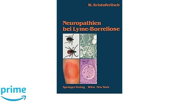 neuropathien bei lyme borreliose