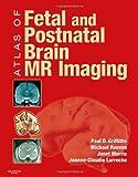 Atlas of Fetal and Postnatal Brain MR, 1e