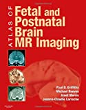 img - for Atlas of Fetal and Postnatal Brain MR, 1e book / textbook / text book