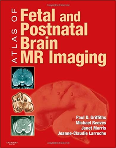Atlas of Fetal and Postnatal Brain MR, 1e