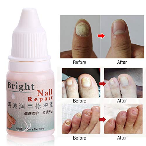 Fungal Nail Treatment Gel Whitening Toe Care Essence Fungus Removal Liquid 1PC 10ml by Zerone (Image #3)
