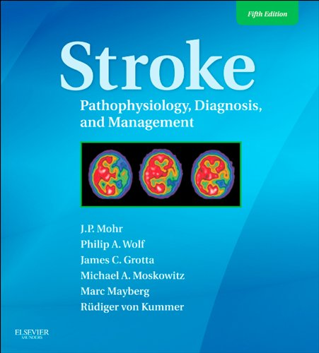 Download Stroke: Pathophysiology, Diagnosis, and Management (Stroke Pathophysiology Diagnosis and Management) Pdf