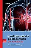 Cardiovasculaire Ziektebeelden, Klopping, Corinne, 9031382272