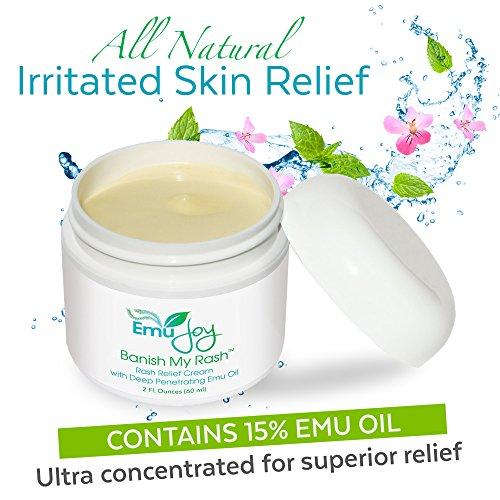Banish My Rash Cream with Emu Oil - Natural Eczema & Psoriasis Treatment, Dermatitis, Rosacea, Hemorrhoids, Shingles, Lichen Sclerosus